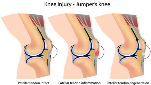 Τενοντίτιδα Επιγονατιδικού Τένοντα (Jumper's knee)