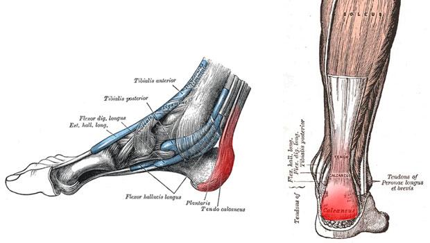 Τενοντίτιδα και Ρήξη Αχίλλειου τένοντα – Συχνή αιτία πόνου στην καθημερινή ζωή και τις αθλητικές δραστηριότητες.