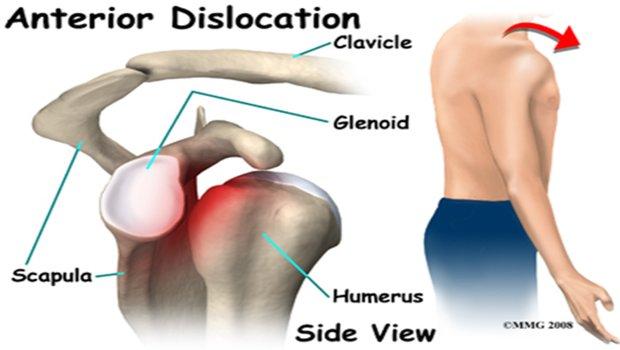 Πρόσθια αστάθεια του ώμου και η συμβολή της φυσικοθεραπείας και των σταθεροποιηικών ασκήσεων